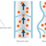 varicose vein image
