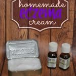 homemade-eczema-cream-recipe