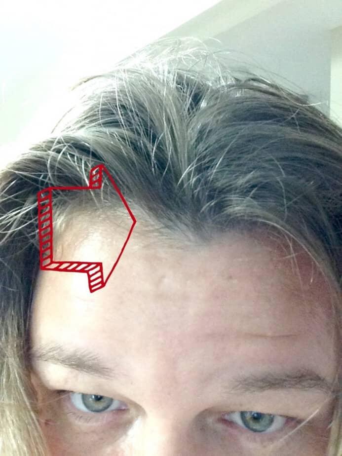 thinning-hair-front-cerafill