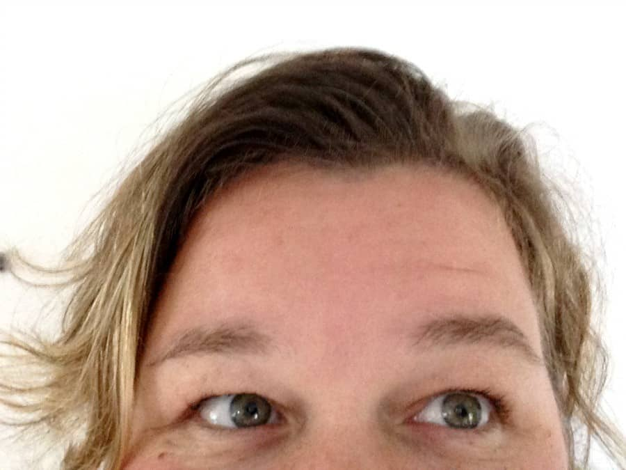 thinning-hair-post-cerafill-after-pic