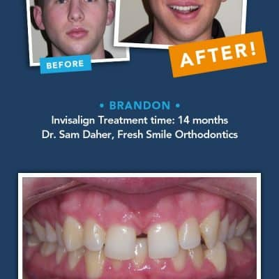 Adult braces? Maybe