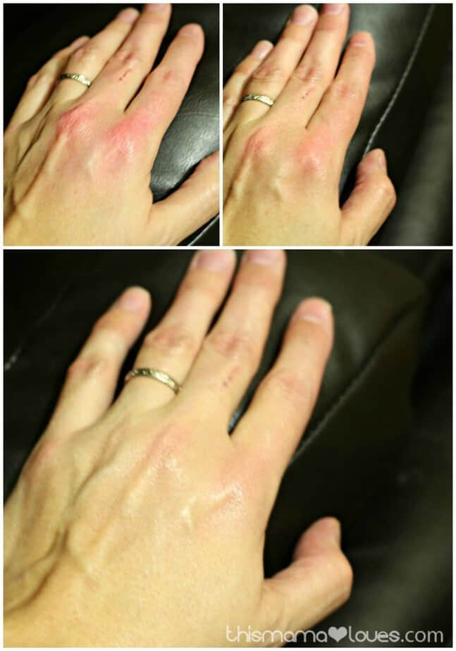 Wintertime Tips for Easing Eczema