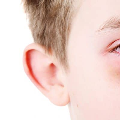 What to Do When Your Kid Gets Pink Eye